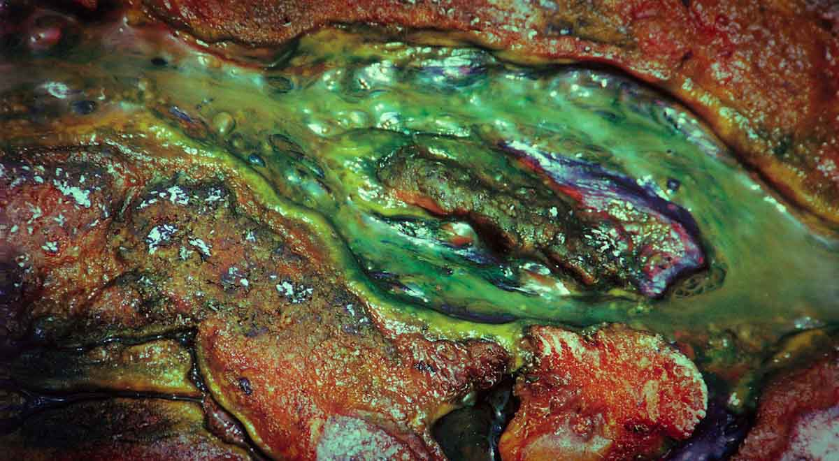 Cyanobakterien Algen Biolumineszenz